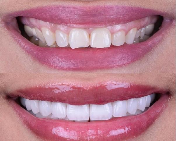 لمینت فوری دندان: یکی از انواع لمینت دندان