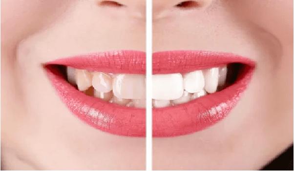 لمینت کامپوزیتی از انواع لمینت دندان است