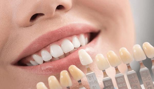تراش مینای دندان