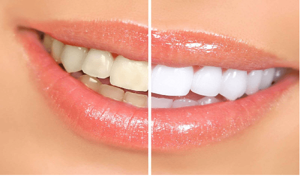 زیبایی لبخند از مزایای لمنیت سرامیکی دندان