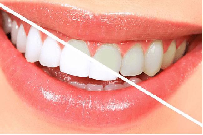 کامپوزیت ای پی اس (IPS)،یکی از انواع کامپوزیت دندان