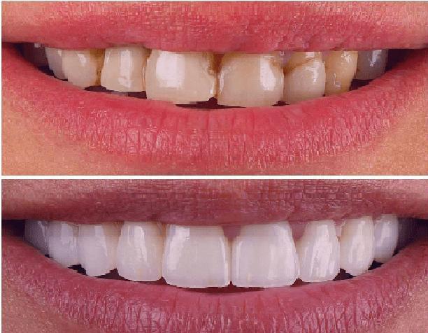 کامپوزیت ماکروفیل، یکی از انواع کامپوزیت دندان