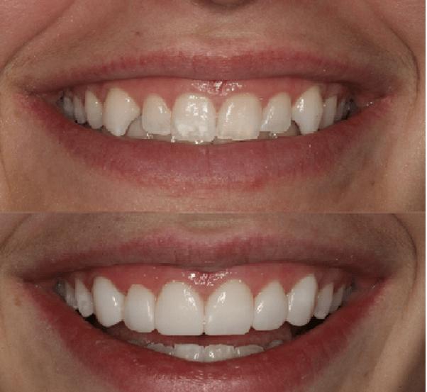 کامپوزیت میکروفیل، از انواع کامپوزیت دندان