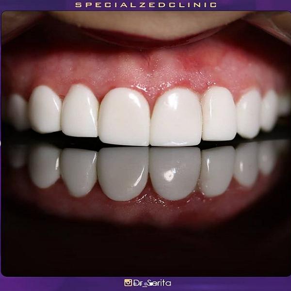 نمونه کامپوزیت دندان دکتر سریتا