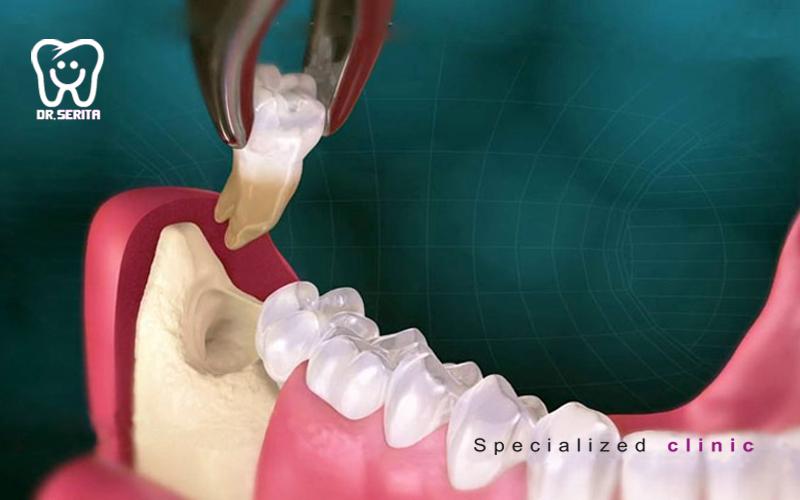 extraction-wisdom-teeth