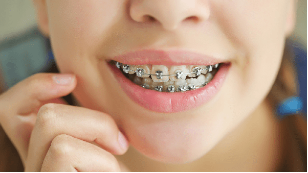 ارتودنسی؛ درمانی برای رفع عیوب ظاهری و ساختار دندان ها