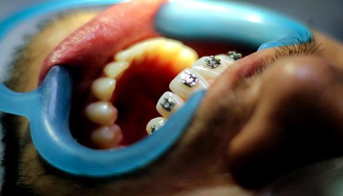 نصب براکت ها روی دندان در ارتودنسی ثابت