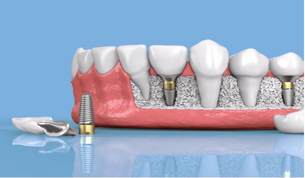 جلوگیری از تحلیل استخوان فک و حرکت دندان از اهمیت ایمپلنت است