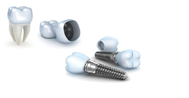 ایمپلنت تیتانیوم، یکی از انواع ایمپلنت دندان