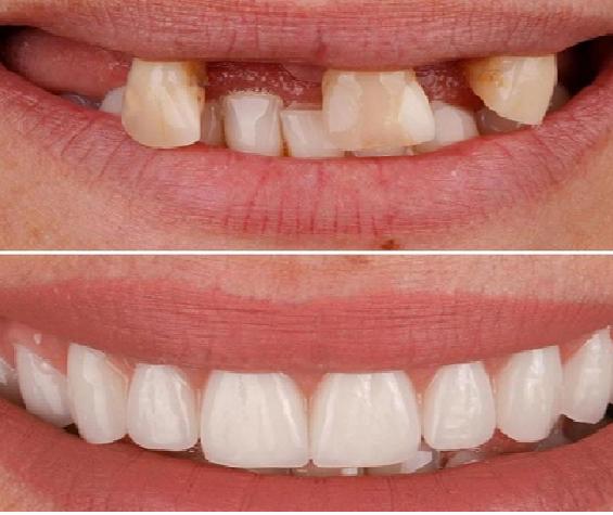 ایمپلنت دندان جلو ( قدامی)