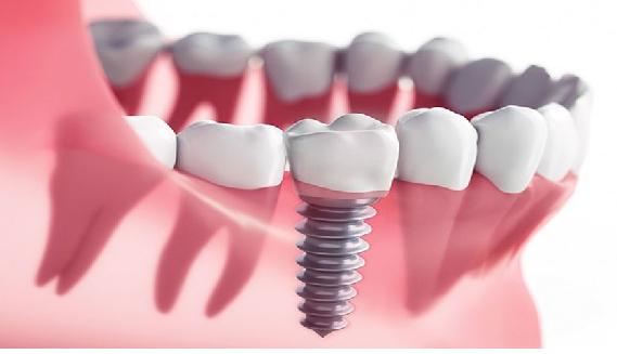 ایمپلنت کل دهان با ایمپلنت تیتانیوم مناسب تر است.