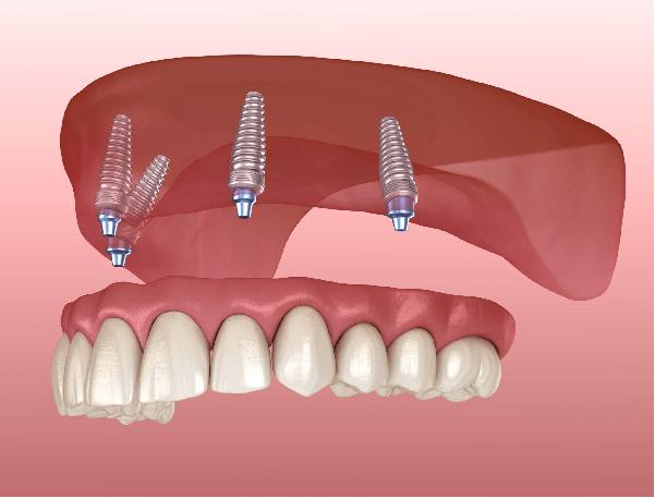 ایمپلنت دندان all on 4 در ایمپلنت کل دندانها