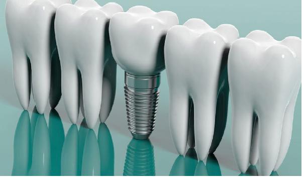 تاج دندان یا ایمپلنت دندان؛ کدام بهتر است؟
