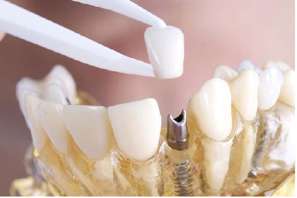 تاج دندان برای قرارگیری روی ایمپلنت دندان به کار می رود