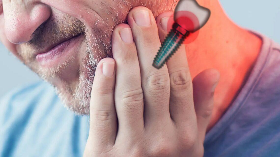 درد ایمپلنت دندان