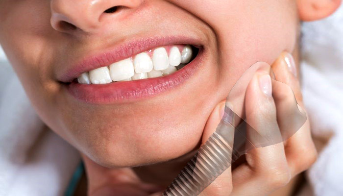 درد ایمپلنت دندان پس از نصب ایمپلنت