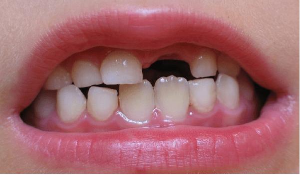 عادات مخرب، ژنتیک، ابتلا به بیماری و ... باعث از دست دادن دندان می شود