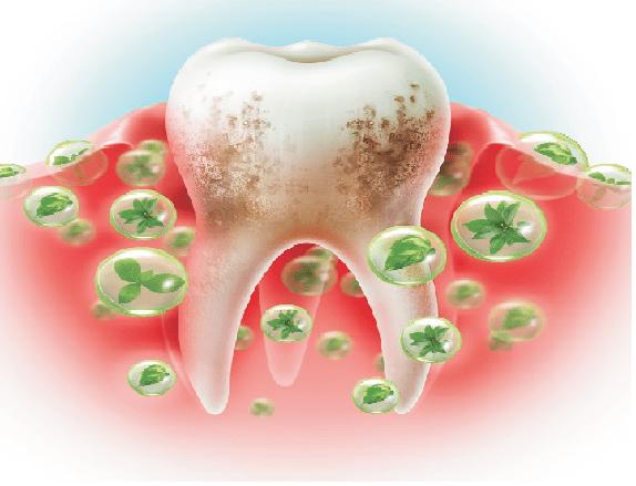 عفونت دندان، یکی از شایع ترین مشکلات دندانی
