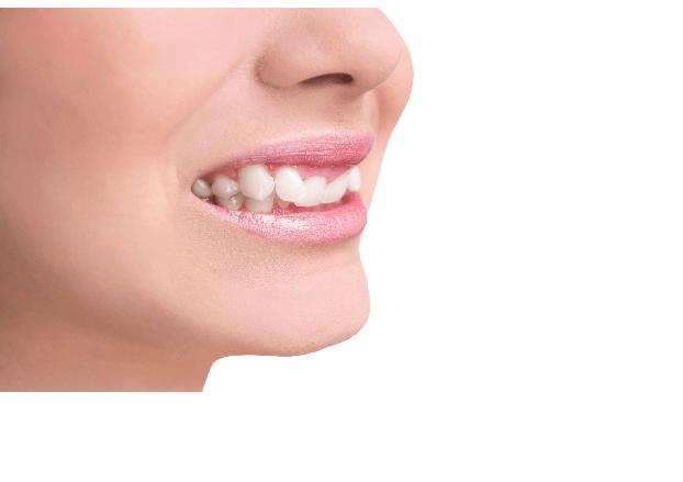از درمان های کجی دندان؛ ارتودنسی و کامپوزیت است