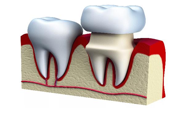 تاج یا روکش دندان