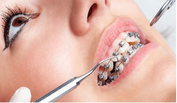 انجام ارتودنسی دندان در 7 مرحله قابل انجام است