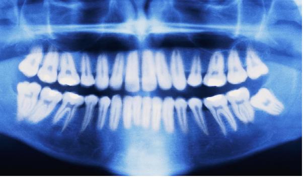 تهیه تصویر OPG از دندان ها در مرحله دوم ارتودنسی.