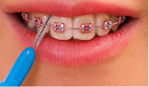 مسواک بین دندانی، یکی از انواع مسواک مخصوص ارتودنسی