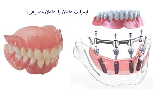 مقایسه ایمپلنت فول موس با دندان مصنوعی