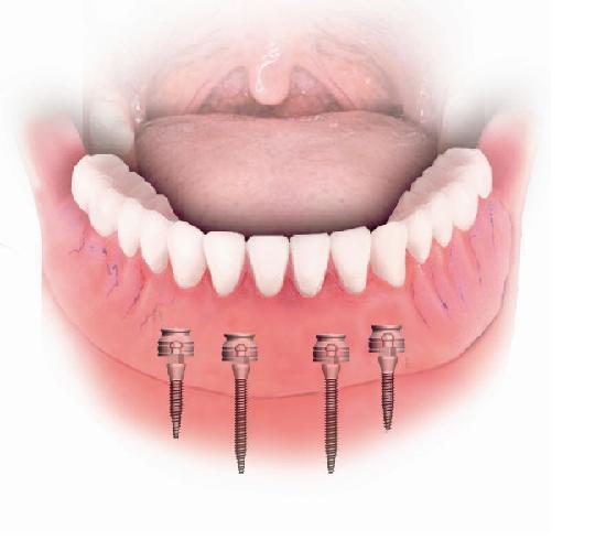 مینی ایمپلنت دندان.