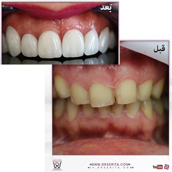 نمونه لمینت دندان