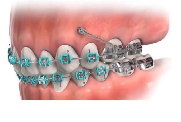 یکی از کاربرد های مینی ایمپلنت ها در ارتودنسی است