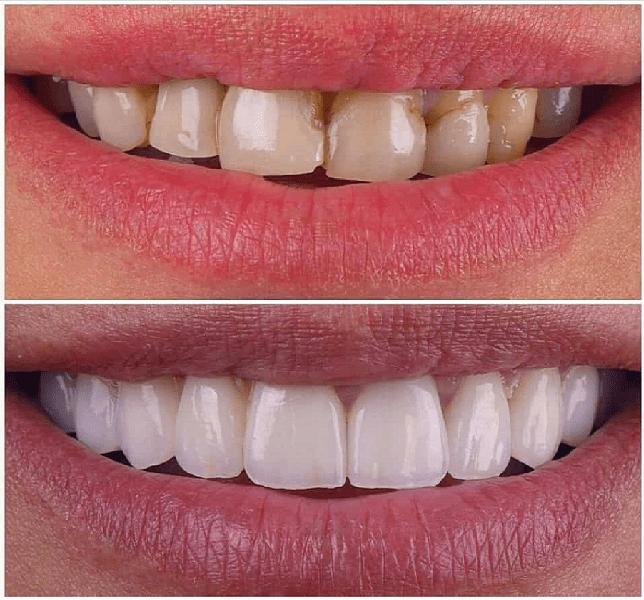 تغییر شکل و فرم دندان ها با کامپوزیت