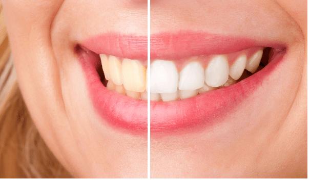 کامپوزیت یکی از راه های تغییر رنگ دندان