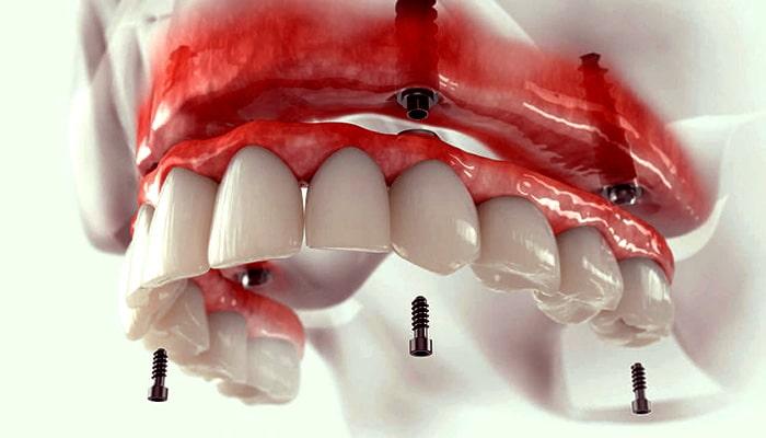 یکی از انواع ایمپلنت دندان