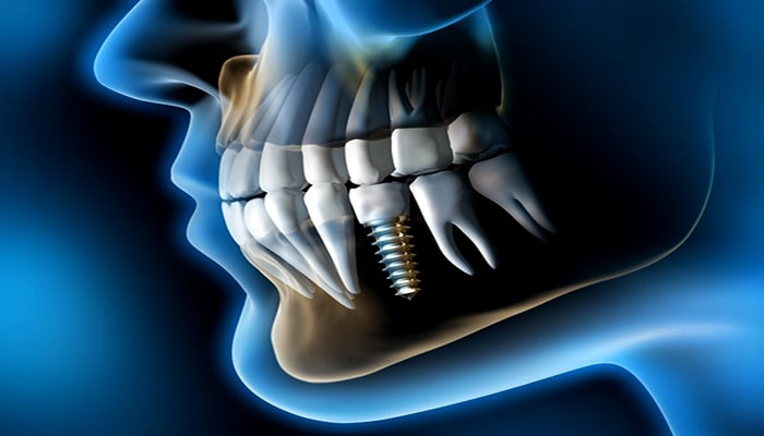 اهمیت ایمپلنت دندان در عدم وجود جای خالی بین دندان ها