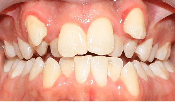 دندان نیش به صورت بیرون زده در قوس فک بالا براثر شلوغی دندان