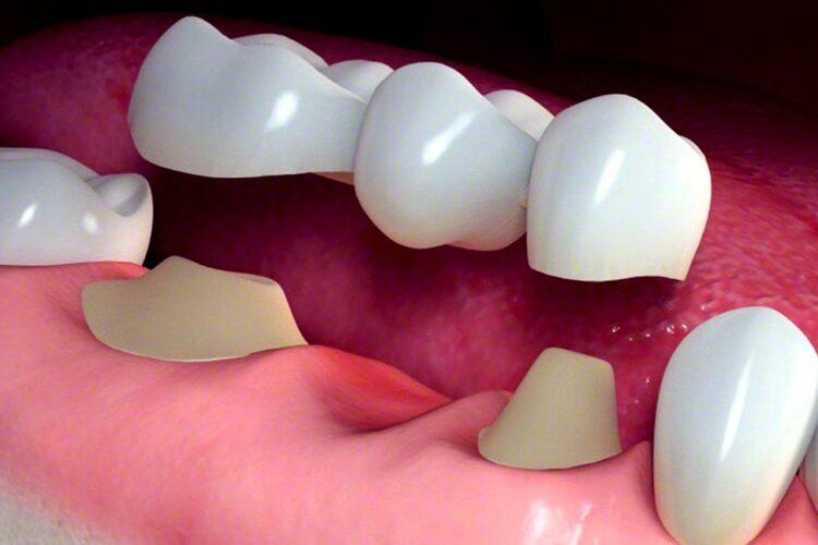 بریج دندان و کاشت دندان جدید