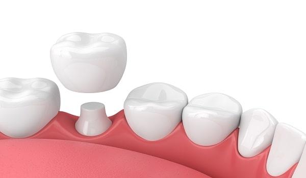 بهبود ظاهر و عملکرد دندان، کوتاه بودن طول درمان و طول عمر زیاد از مزایای بریج است