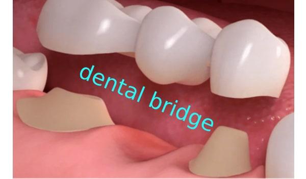 بریج دندان؛یکی از راه های جبران دندان از دست رفته