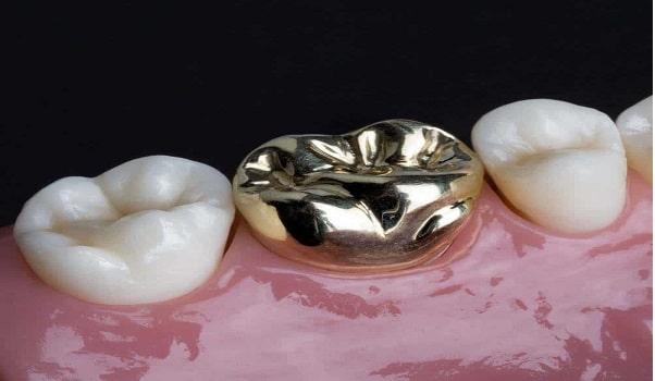 یکی از انواع بریج دندانِ؛ بریج فلزی است