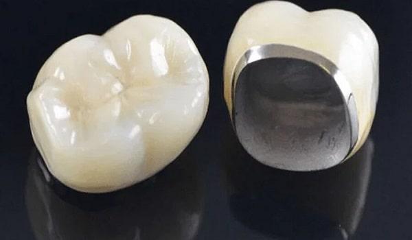 یکی از انواع بریج دندانِ؛ بریج فلز سرامیک است