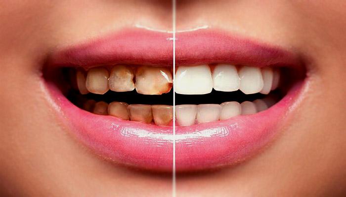 تغییر رنگ از عوارض شایع لمینت دندان