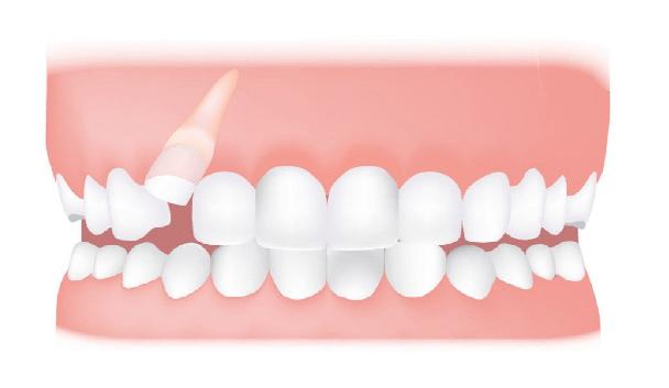 دندان نیش ممکن است نهفته در استخوان فک باقی بماند