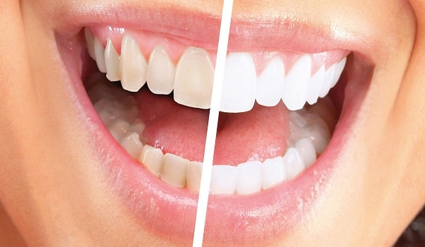 رنگ لمینت دندان باید متناسب با رنگ پوست و سایر دندان ها انتخاب شود