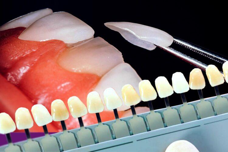 انواع رنگ لمینت دندان