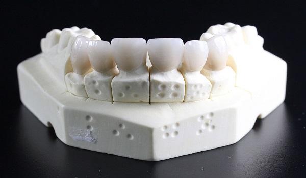 ساخت لمینت دندان