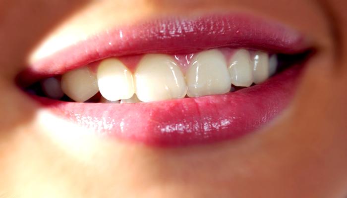 سلامتی دندان ها با چکاپ منظم دندان ها
