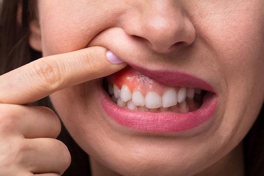 سرطان دهان یکی از مواردی است که در چکاپ ماهانه مورد بررسی قرار می گیرد