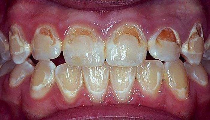 آسیب به مینای دندان، از عوارض ارتودنسی دندان