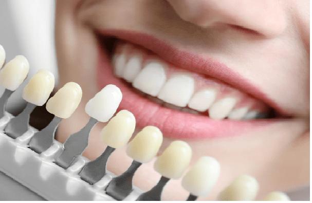 عوارض لمینت دندان: پوسیدگی دندان، تغییر رنگ و بیماری های لثه و ... .